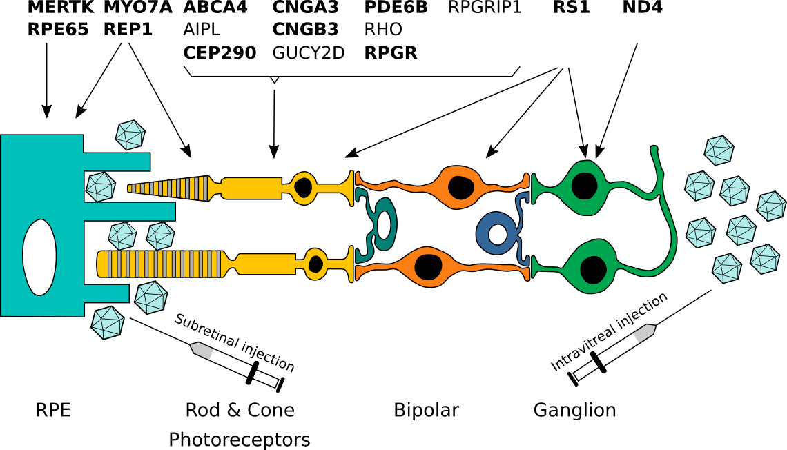 Schematic representation of the retina and pattern of expression of retinal genes. Genes for which gene therapy approaches are in clinical testing are indicated in bold. RPE: retinal pigment epithelium.