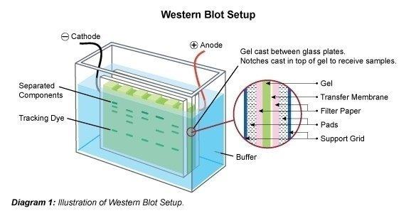 Western Blotting (immunoblot)