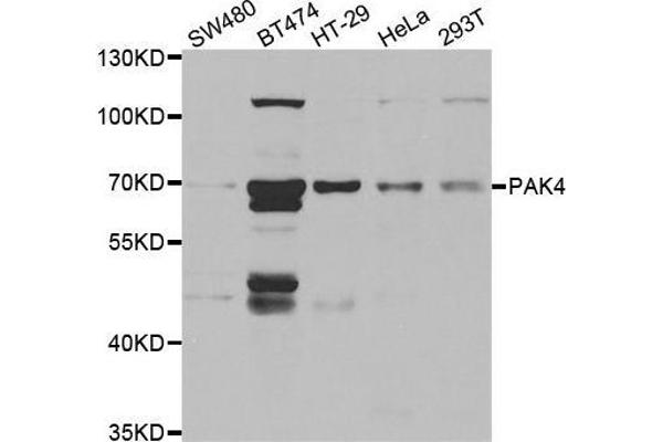 Western blot analysis of extracts of various cell lines, using PAK4 antibody.
