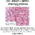 anti-ERAP1 Antikörper (Endoplasmic Reticulum Aminopeptidase 1) (Internal Region)