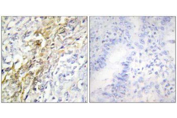 Immunohistochemistry analysis of paraffin-embedded human lung carcinoma tissue using CKI- alpha antibody.