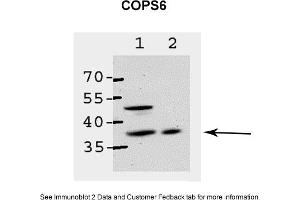 Sample Type: 1. ABAE cells2. CHO-IR cellsPrimary Dilution: 1:200Secondary Anitbody: HRP conjugated anti-rabbitImage Submitted By: Dr. Elah PickUniversity of Haifa at Oranim
