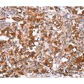 anti-Glomulin, FKBP Associated Protein (GLMN) antibody