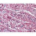 anti-SSTR5 Antikörper (Somatostatin Receptor 5) (2nd Extracellular Domain)