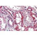 anti-AGPS Antikörper (Alkylglycerone Phosphate Synthase)