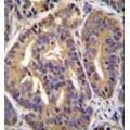 anti-General Transcription Factor IIH, Polypeptide 2C (GTF2H2C) (AA 321-351), (C-Term) antibody
