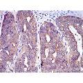 anti-CBL Antikörper (Cas-Br-M (Murine) Ecotropic Retroviral Transforming Sequence)