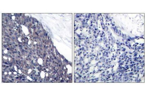 Immunohistochemical analysis of paraffin-embedded human breast carcinoma tissue using IκB-α (Ab-42) antibody (E021176).