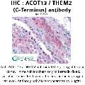anti-Acyl-CoA Thioesterase 13 (ACOT13) (C-Term) Antikörper
