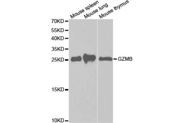 Western blot analysis of extracts of various cell lines, using GZMB antibody.