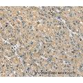 Immunohistochemistry of Human liver cancer using PHLPP1 Polyclonal Antibody at dilution of 1:35