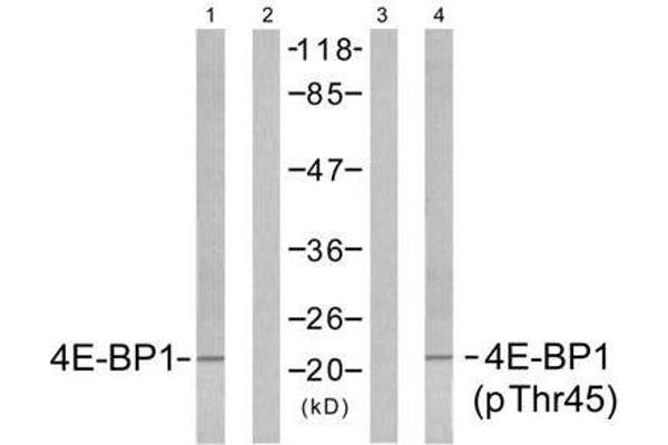 Western blot analysis of extracts from MDA-MB-435 cells untreated or treated with EGF (200ng/ml, 5min), using 4E-BP1 (Ab-45) antibody (E021216, Lane1 and 2) and 4E-BP1 (phospho-Thr45) antibody (E011223, Lane 3 and 4).
