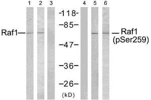 Western blot analysis of extracts using Raf-1 (Ab-259) antibody (E021006, Line 1, 2, and 3) and Raf-1 (phospho- Ser259) antibody (E011006, Line 4, 5, and 6). Peptide - - + - - -