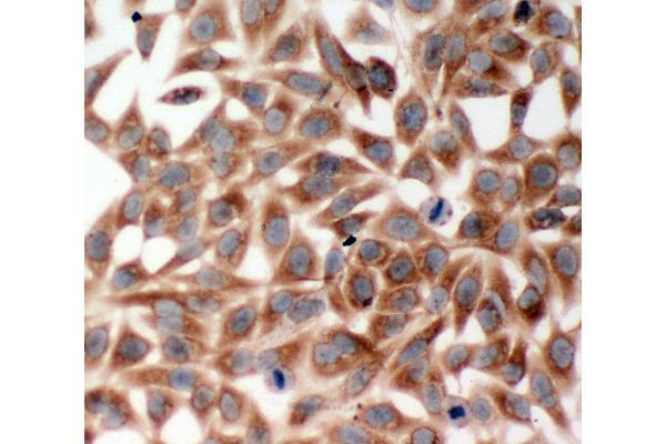 Anti-TRAF2 antibody, ICC ICC: HELA Cell
