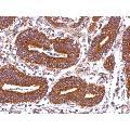 anti-HLA-DQB2 Antikörper (Major Histocompatibility Complex, Class II, DQ beta 2) (Center)