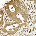 anti-ACTR2 Antikörper (ARP2 Actin-Related Protein 2 Homolog (Yeast))