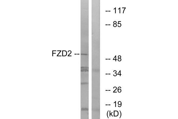 Western blot analysis of extracts from HeLa cells, using FZD2 antibody.