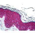 anti-Ubiquitin-Conjugating Enzyme E2D 2 (UBE2D2) (AA 1-95) Antikörper