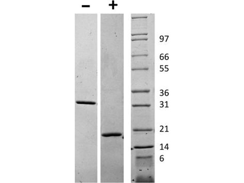 Image no. 1 for Colony Stimulating Factor 1 (Macrophage) (CSF1) protein (ABIN6699711)