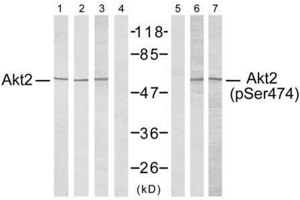 Western blot analysis using Akt2 (Ab-474) antibody (E021155, Lane 1, 2, 3 and 4) and Akt2 (phospho- Ser474) antibody (E011124, Lane 5, 6 and 7).