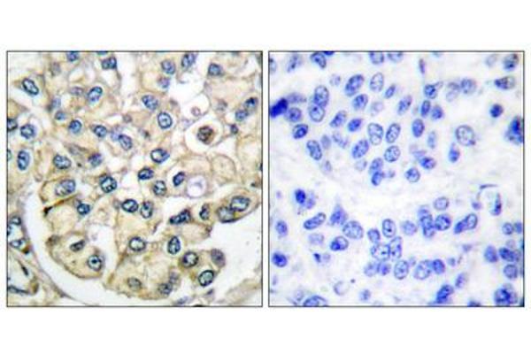 Immunohistochemical analysis of paraffin-embedded human breast carcinoma tissue using FGFR2 antibody.