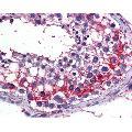 anti-Testis Derived Transcript (3 LIM Domains) (TES) (AA 1-422) Antikörper