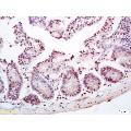 anti-Castor Zinc Finger 1 (CASZ1) Antikörper