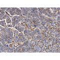 anti-MMP1 anticorps (Matrix Metallopeptidase 1 (Interstitial Collagenase)) (Center)