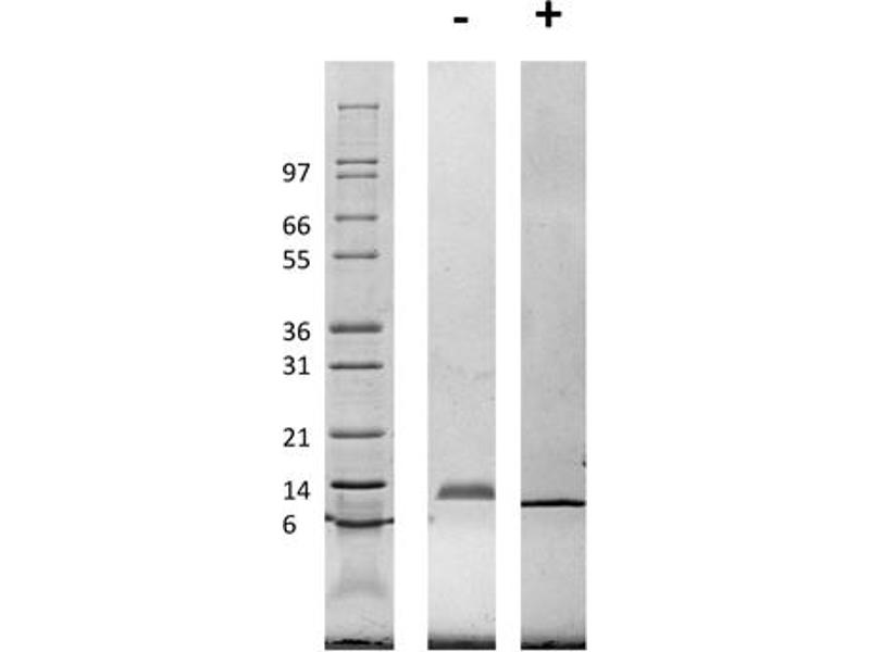 Image no. 1 for Chemokine (C-C Motif) Ligand 3 (CCL3) protein (ABIN6699629)