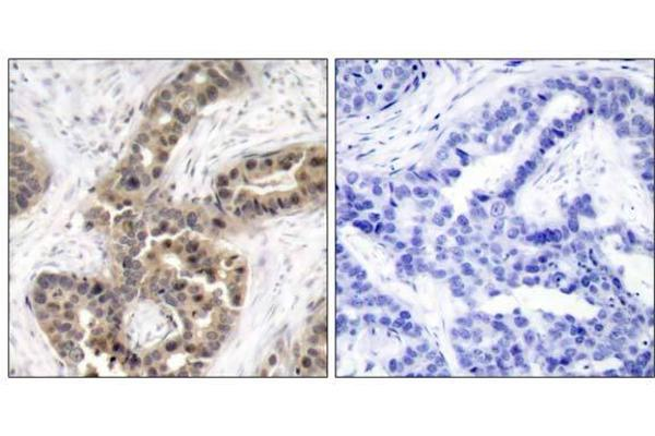 Immunohistochemical analysis of paraffin-embedded human breast carcinoma tissue using p21Cip1 (phospho-Thr145) antibody (E011206).