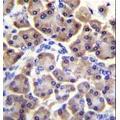 anti-MRPS12 antibody (Mitochondrial Ribosomal Protein S12) (AA 35-67)