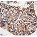 anti-AKT2 anticorps (V-Akt Murine Thymoma Viral Oncogene Homolog 2) (AA 416-444)