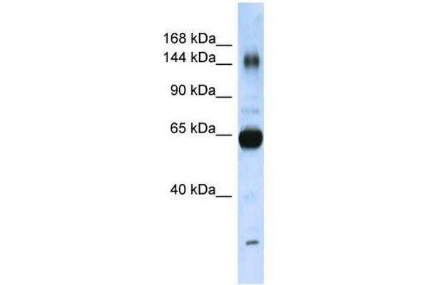 WB Suggested Anti-COL11A2 Antibody Titration:  0.2-1 ug/ml  ELISA Titer:  1:312500  Positive Control:  Human Placenta