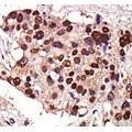 anti-Protein Kinase D3 (PRKD3) (AA 352-384) antibody