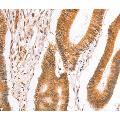 anti-TAX1BP1 Antikörper (Tax1 (Human T-Cell Leukemia Virus Type I) Binding Protein 1)