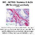 anti-ACTG2 Antikörper (Actin, gamma 2, Smooth Muscle, Enteric)