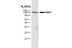 Image no. 1 for anti-Poly (ADP-Ribose) Polymerase 1 (PARP1) antibody (ABIN2476185)