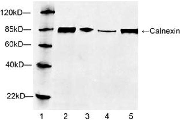 Lane 1: MarkerLane 2: Hela cell lysateLane 3: HEK293 cell lysateLane 4: NIH/3T3 cell lysateLane 5: HepG2 cell lysateWestern blot analysis of cell lysates using 1 µg/mL Rabbit Anti-Calnexin Polyclonal Antibody (ABIN398769) The signal was developed with IRDyeTM 800 Conjugated Goat Anti-Rabbit IgG.