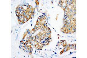 Anti-Cytokeratin Peptide 18 antibody (monoclonal), IHC(P) IHC(P): Human Mammary Cancer Tissue