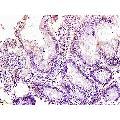 anti-Leucine Zipper Transcription Factor-Like 1 (LZTFL1) (AA 150-200) anticorps