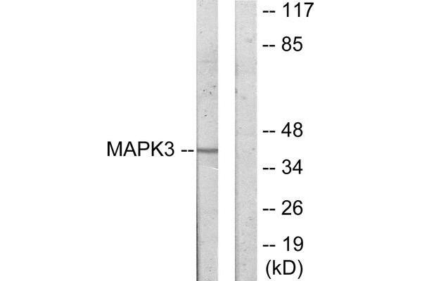 Western blot analysis of extracts from COLO205 cells, using MAPK3 antibody.