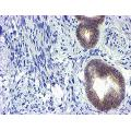 anti-GSTO2 Antikörper (Glutathione S-Transferase omega 2)