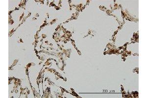 Image no. 1 for anti-Ubiquitin Protein Ligase E3A (ube3a) (AA 51-151) antibody (ABIN2477024)