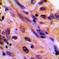 anti-CDC42EP4 antibody (CDC42 Effector Protein (Rho GTPase Binding) 4)