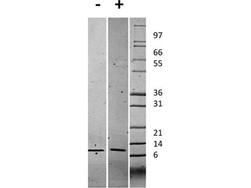 Image no. 2 for Chemokine (C-X-C Motif) Ligand 1 (Melanoma Growth Stimulating Activity, Alpha) (CXCL1) protein (ABIN6699665)
