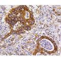 anti-BBC3 antibody (BCL2 Binding Component 3)