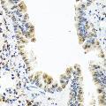 anti-CALCB 抗体 (Calcitonin-Related Polypeptide beta)