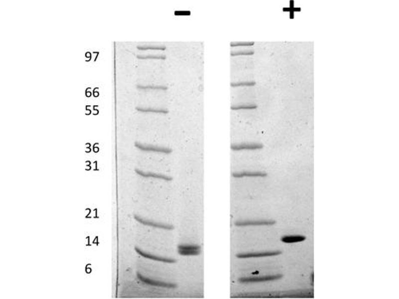 Image no. 2 for FGF acidic protein (ABIN6699828)