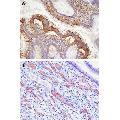 anti-EPH Receptor A2 antibody (EPHA2)