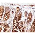anti-HSPA8 Antikörper (Heat Shock 70kDa Protein 8) (N-Term)